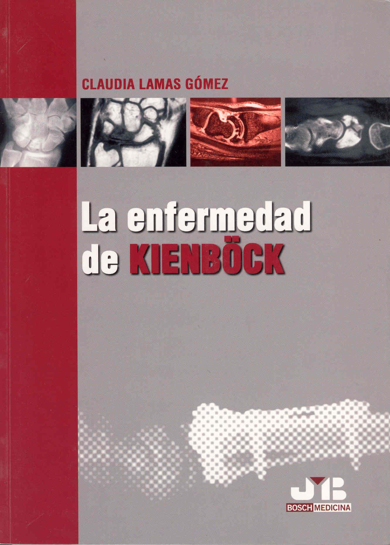Enfermedad De Kienböck (ed. Bilingüe Español-ingles) por Claudia Lamas Gomez Gratis