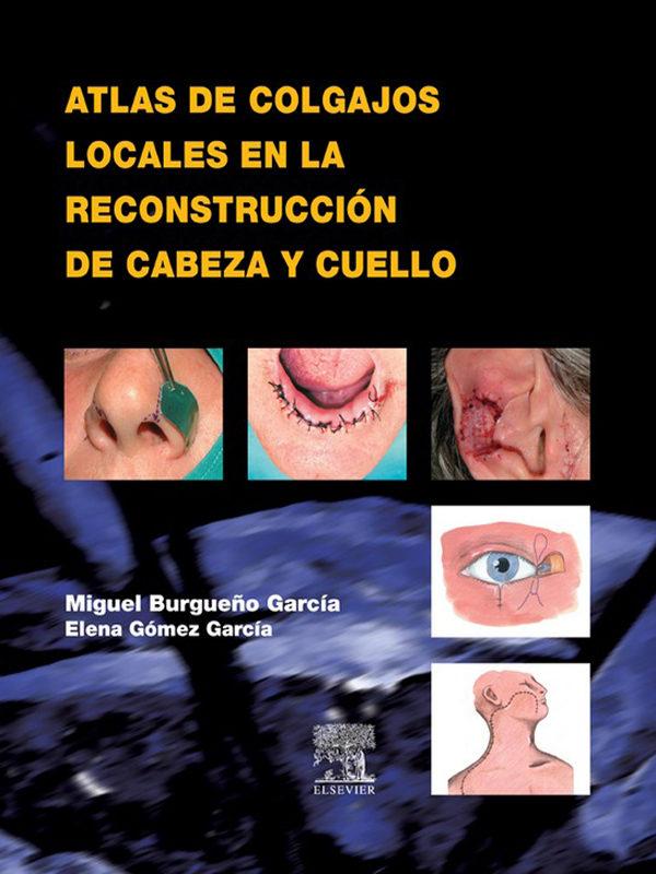 ATLAS DE COLGAJOS LOCALES EN LA RECONSTRUCCIÓN DE CABEZA Y CUELLO ...