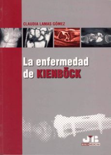 Descargar ebook file txt ENFERMEDAD DE KIENBÖCK (ED. BILINGÜE ESPAÑOL-INGLES) (Literatura española) 9788476987407 DJVU de CLAUDIA LAMAS GOMEZ