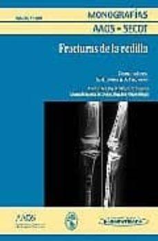Inmaswan.es Monografias Aaos - Secot: Fracturas De Rodilla Image