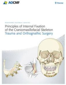 Descárgalo e libros PRINCIPLES OF INTERNAL FIXATION OF THE CRANIOMAXILLOFACIAL SKELET ON: TRAUMA AND ORTHOGNATHIC SURGERY (Spanish Edition) 9783131714817 MOBI CHM