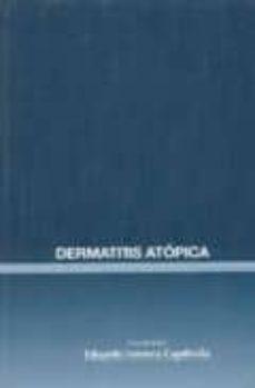 Pdb descargar ebooks DERMATITIS ATOPICA de EDUARDO FONSECA CAPDEVILA 9788495033567 FB2 CHM