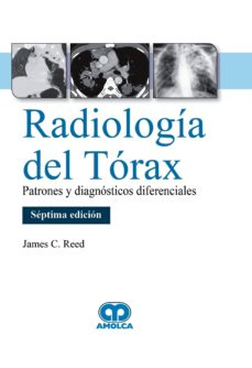 Libro en español descarga gratuita RADIOLOGÍA DEL TÓRAX. PATRONES Y DIAGNÓSTICOS DIFERENCIALES (7ª ED.) (Literatura española)